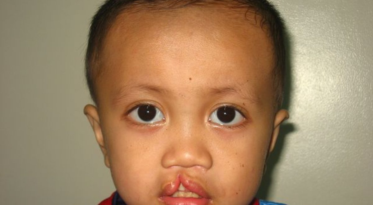 medicalprogram-hanef-abdul-samad_before-surgery